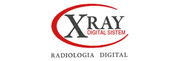 X Ray Digital Sistem